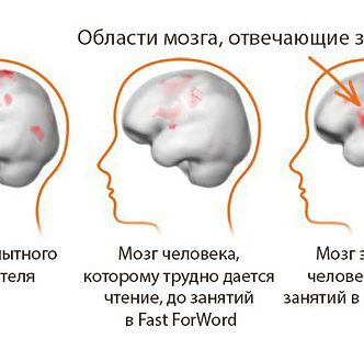 коррекция дислексии, обучение чтению, фонематический слух, развитие чтения ребенка, Fast ForWord, дислексия, ОНР, ЗРР, мозг читателя