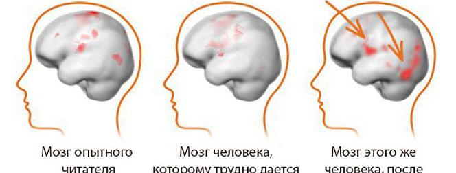 дислексия, Развитие речи, Fast Word, Fast For Word, фаст фор ворд, дисграфия, задержка в развитии, дефицит внимания, проблемы с учебой, обучение чтению, коррекция дислексии, НСВ, нарушение слухового восприятия, расстройство обучения