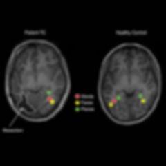 эпилепсия и пластичность мозга.jpg