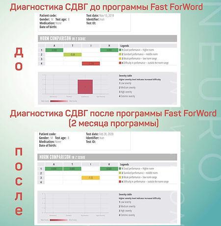 коррекция импульсивности Fast ForWord пр