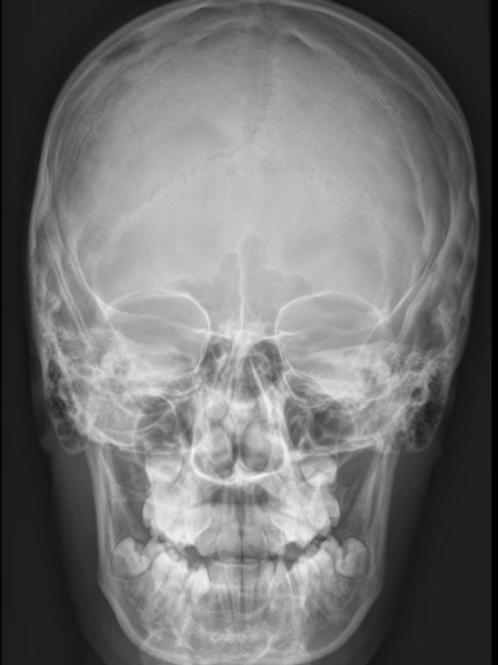 Skull/Sinuses Module