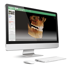 Digitales Röntgenbild bei der Implantatplanung