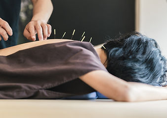 Therapist%20Giving%20acupuncture%20Treat