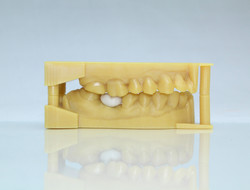 Dental Model 1 Edited