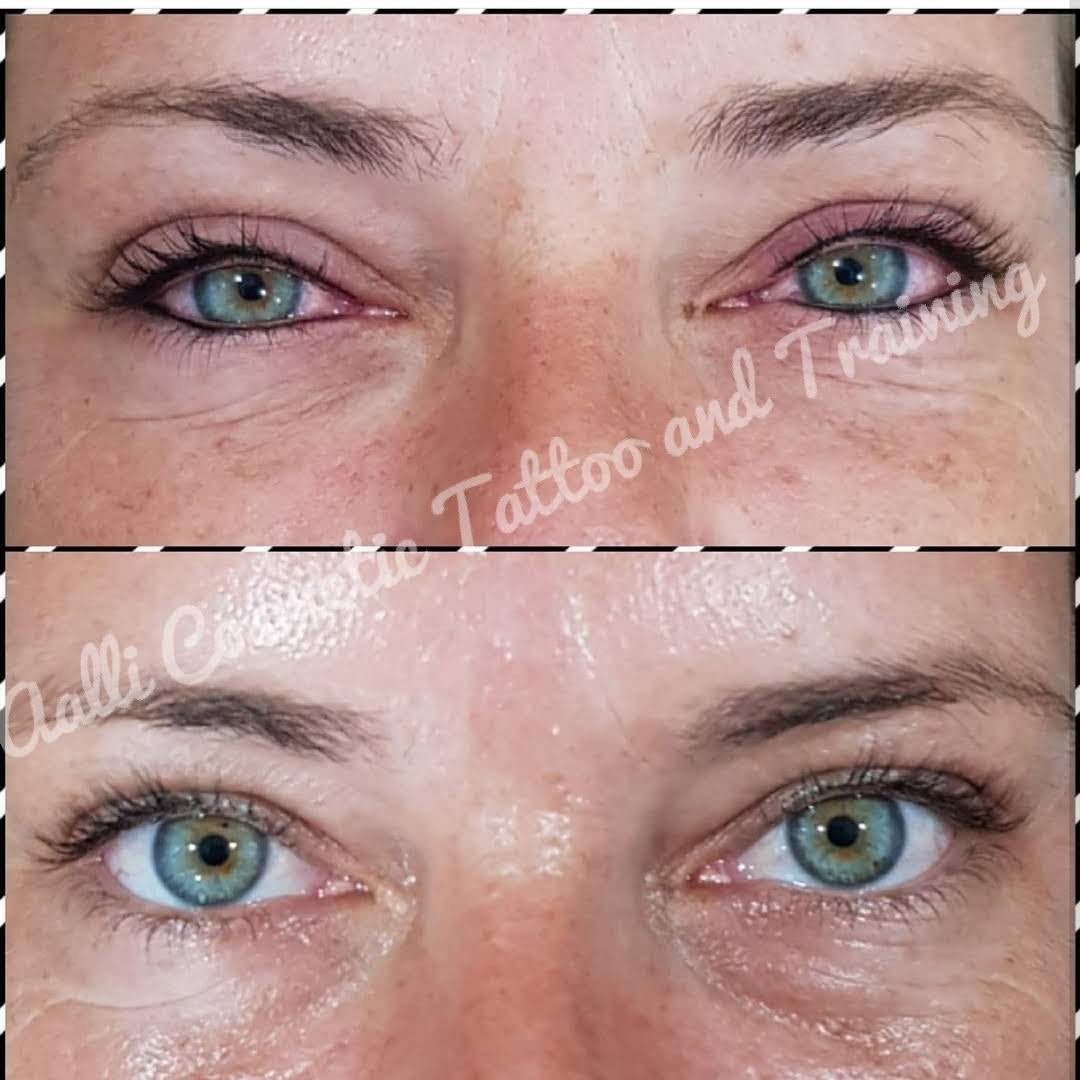 Upper and Lower Lash Line