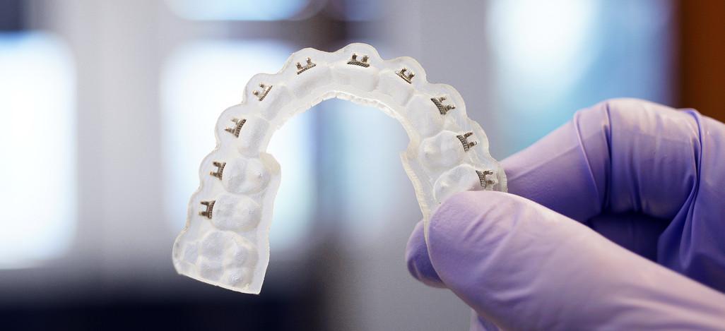 3D Printing Indirect Bonding Trays