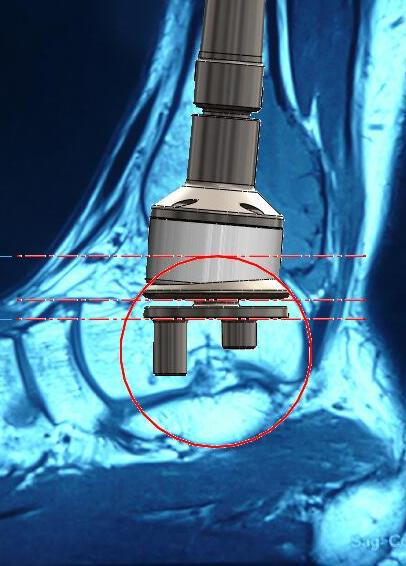 Distal Tibia - X-ray - CAD