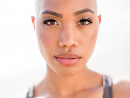 Chatting with Cedrice Webber from the Voice About Alopecia, Self-care and Confidence