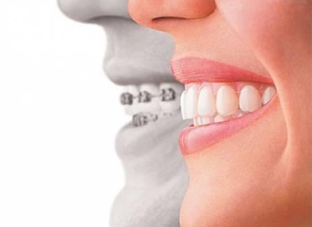ortodoncia-e-implantes-dentales-en-6-cuotas-sin-interes-10296-MLA20026556173_012014-O