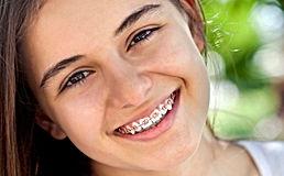clinica odontologica,dentista higienópolis,siso,dor de dente, estética implantes, invisaling, ortodontia, facetas,lente de contato, metal free, protocolo, fonoaudiologa,implantes,dor de dente,clareamento dentário,cirurgiao buco maxilo facial, dr mayer beinisch, dra silvia migdal,dra luciana pripas, dra debora negrao,dra miriam goliger, clinica odontologica estética e funcional, dentistas higienopolis,santa cecília, perdizes, especialista, novo sorriso, sorriso de artista, implante imediato, carga imediata, profissionais de qualidade, bruxismo, implantes importados e nacionais, straumann, neodent, dr marcelo kignel, fono, odontologia do sono, apneia, sisos, ortodontia invisivel clearaligner, sorriso,