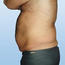 abdomen(1).jpg