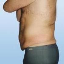 abdomen-after1.jpg