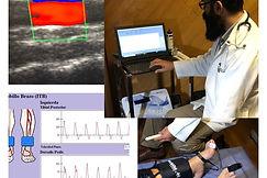 ultrasonido, doppler, pletismografia, laboratorio vascular no invasivo