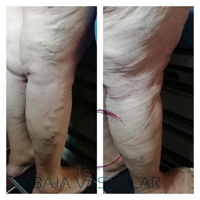 escleroterapia de varices en ensenada