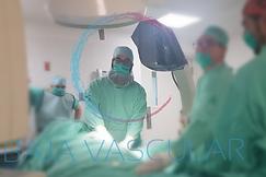 procedimientos endovasculares, varices por laser, cateterismos de piernas