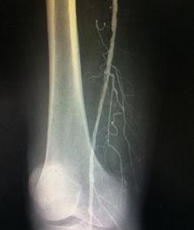 angioplastia arteria poplitea