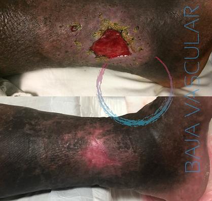 ulcera venosa cicatrizada