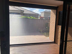 Black Ziptrak Outdoor Blinds done by Maj