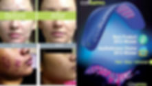 Celluma acne.jpg