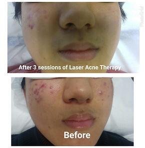 nice laser acne.jpg
