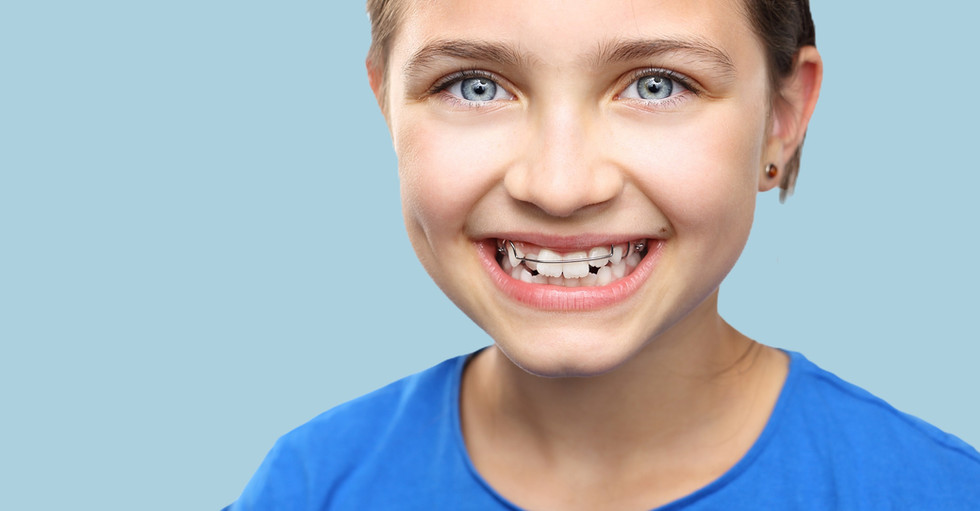 Healthy, beautiful smile, the child to the dentist.Portrait of a little girl with orthodontic appliance ._edited.jpg