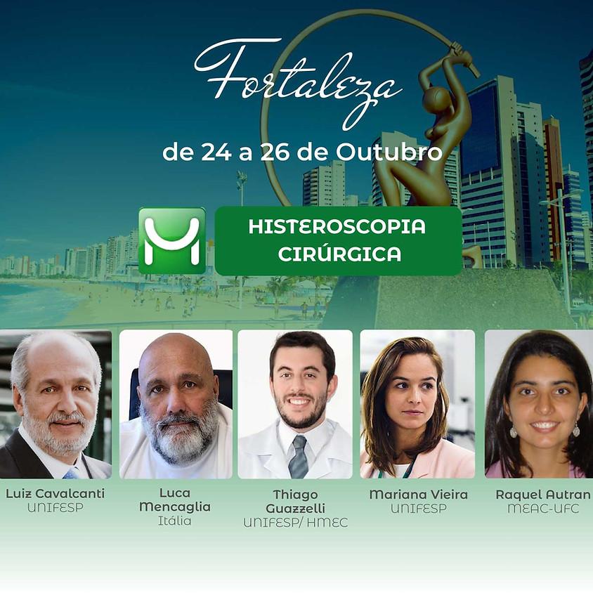 Fortaleza - Histeroscopia Cirúrgica - Endoscopia Ginecológica