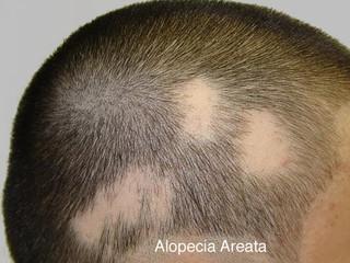 ALOPÉCIA AERATA