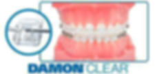 Damon Clear Braces at Tulsa Braces