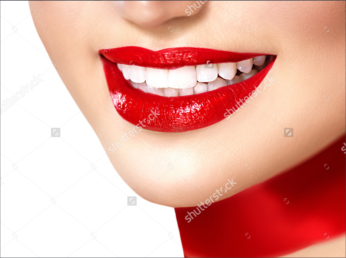 teeth whitening 2
