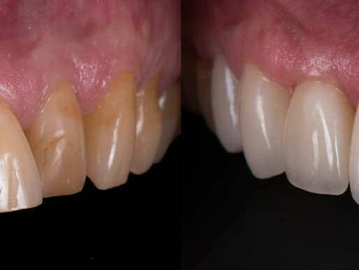The ugly side of composite bonding