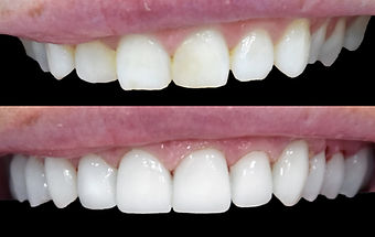 Before and After of Dental Veneers in Mallorca