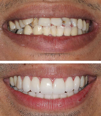 Smile makeover in Santa Ponsa, Mallorca
