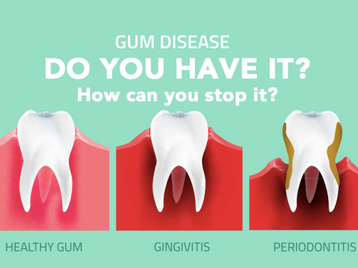 Why do gums bleed and how you can cure your bleeding gums (All you need to know)