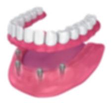 Full denture on implants in Santa Ponsa Mallorca