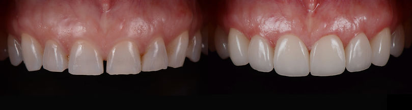 Repairing teeth grinding damage with crowns in Mallorca