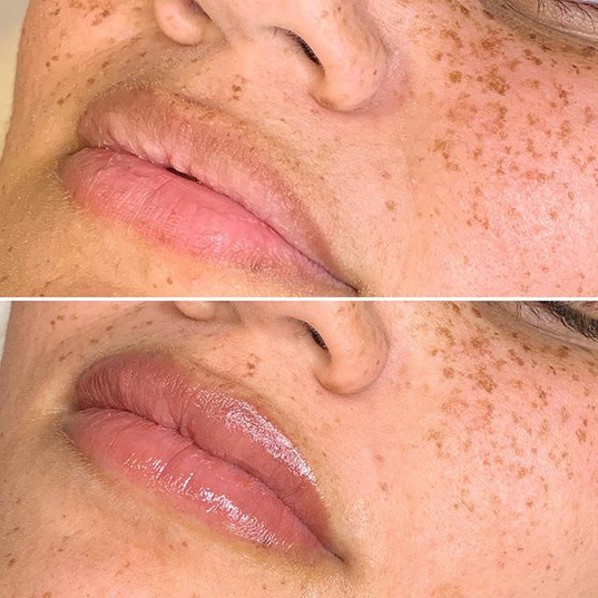 This client was self concious of the brown outline on her lips. We blended it away!