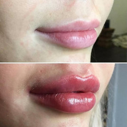 Enchimento lábios