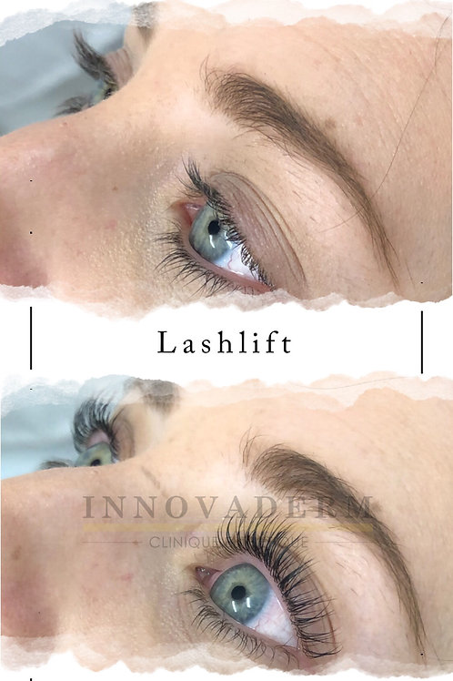 Lash lift (Rehaussement de cils et teinture)