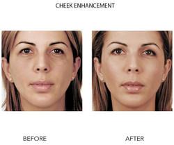 Cheek Enhancement Photoshop
