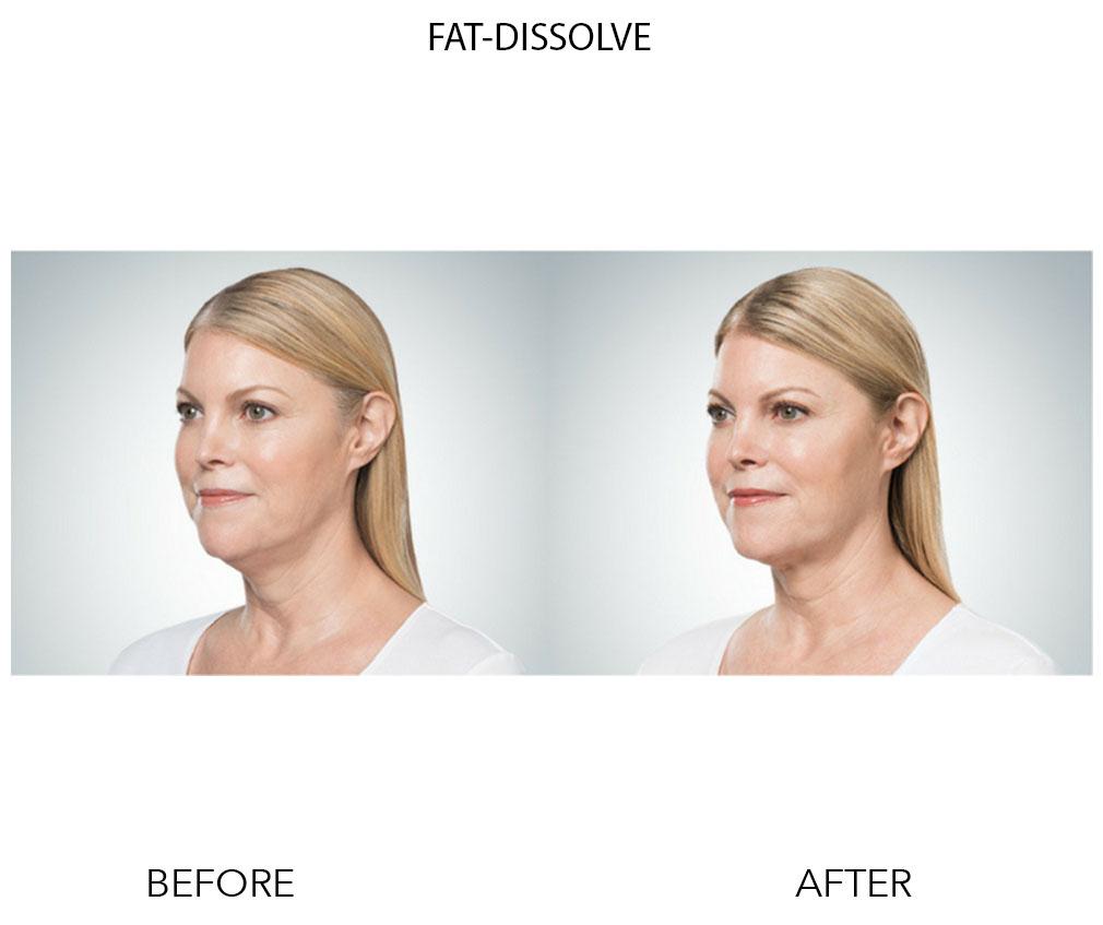 Fat Dissolve 3