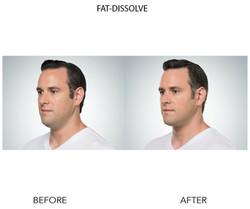 Fat Dissolve 2