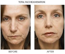 Total Face Rejuventation PS