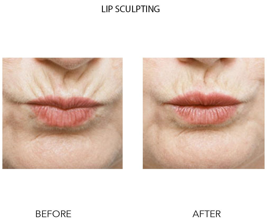 Lip Sculpting PS