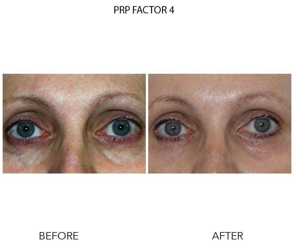 PRP Factor 4 PS1