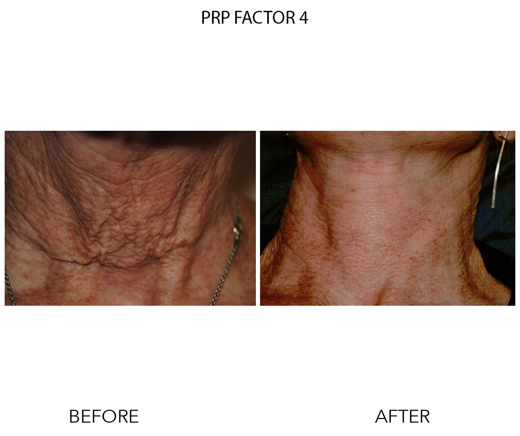 PRP Factor 4 PS2