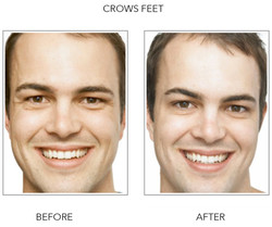 Before and After Crows Feet