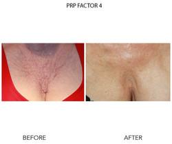 PRP Factor 4 PS3