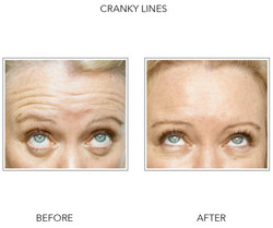 Before and After Cranky Lines