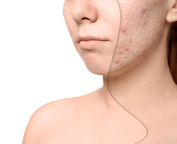 Young woman before and after acne treatm