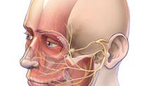Cuando el rostro pierde su expresión: Parálisis facial periférica